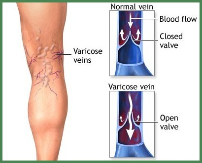 Using bentonite clay to remove spider veins and varicose veins